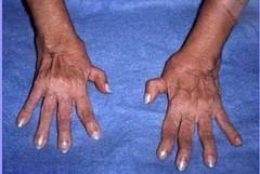 Vivere in zone trafficate favorisce l'artrite